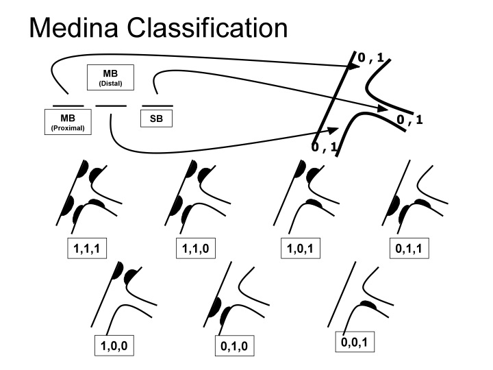 Classification de Medina