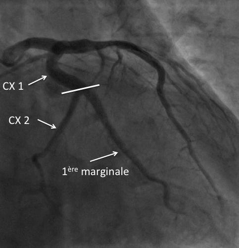 Anatomie CX