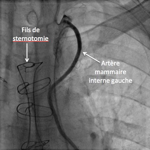 Pontage Mammaire interne G-IVA
