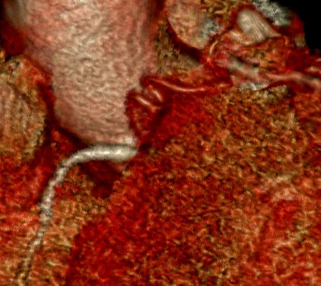Fistule coronaro-pulmonaire