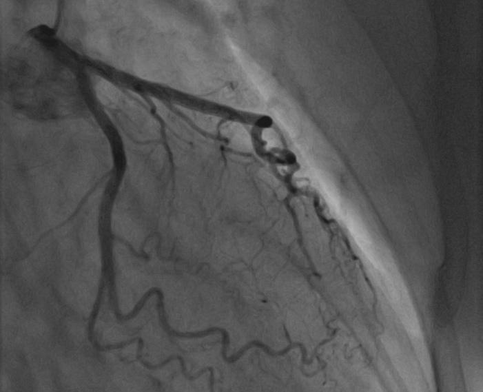 Coronaires gauche normales