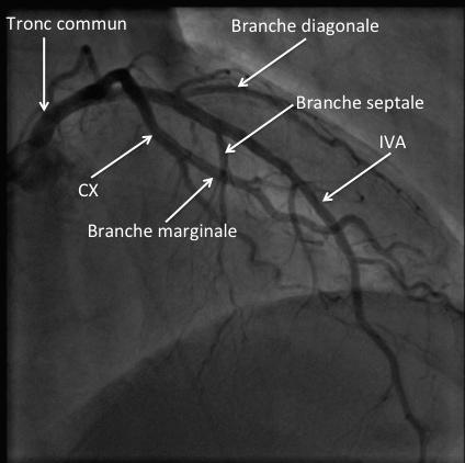 Réseau coronaire gauche