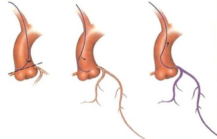 Cathétérisme coronaire gauche par voie radiale