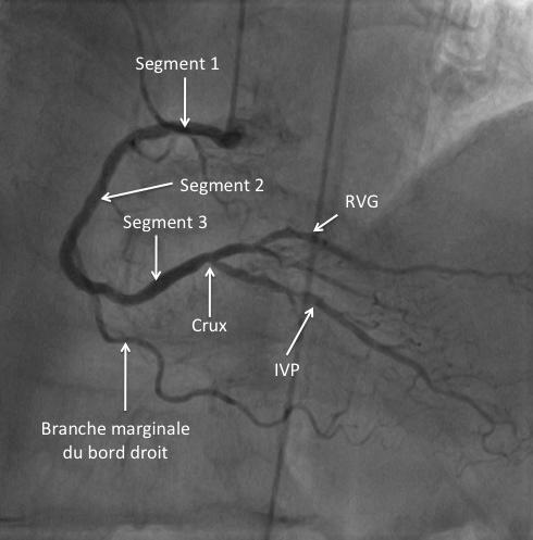 Incidence coronaire droite en face craniale30°