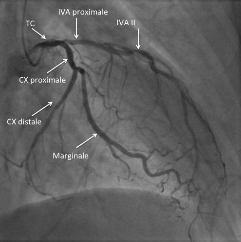 Incidence coronaire gauche en OAD30°
