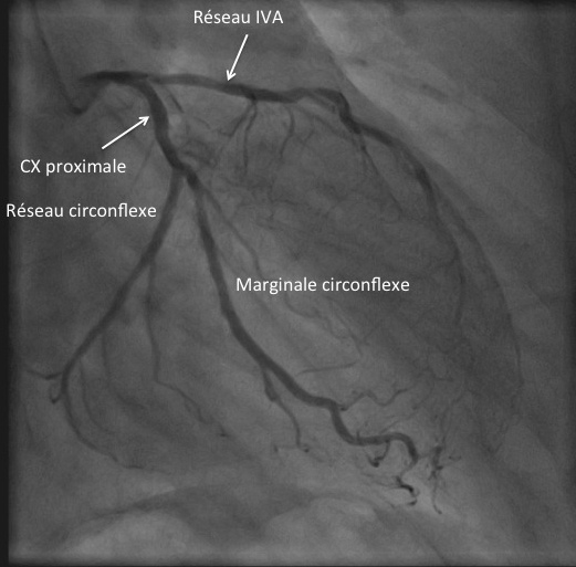 Incidence coronaire gauche en OAD30° Caudale 20°