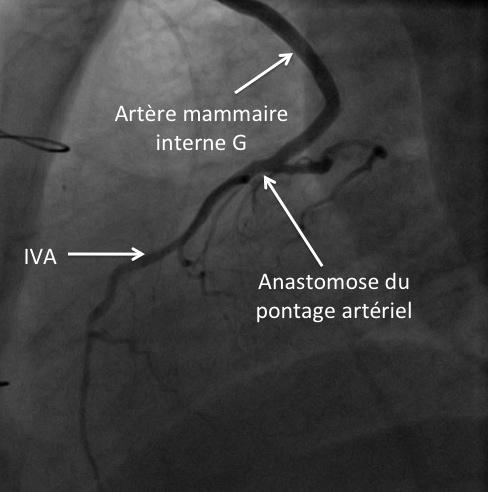 Incidence de profil pour l'anastomose mammaire interne G-IVA