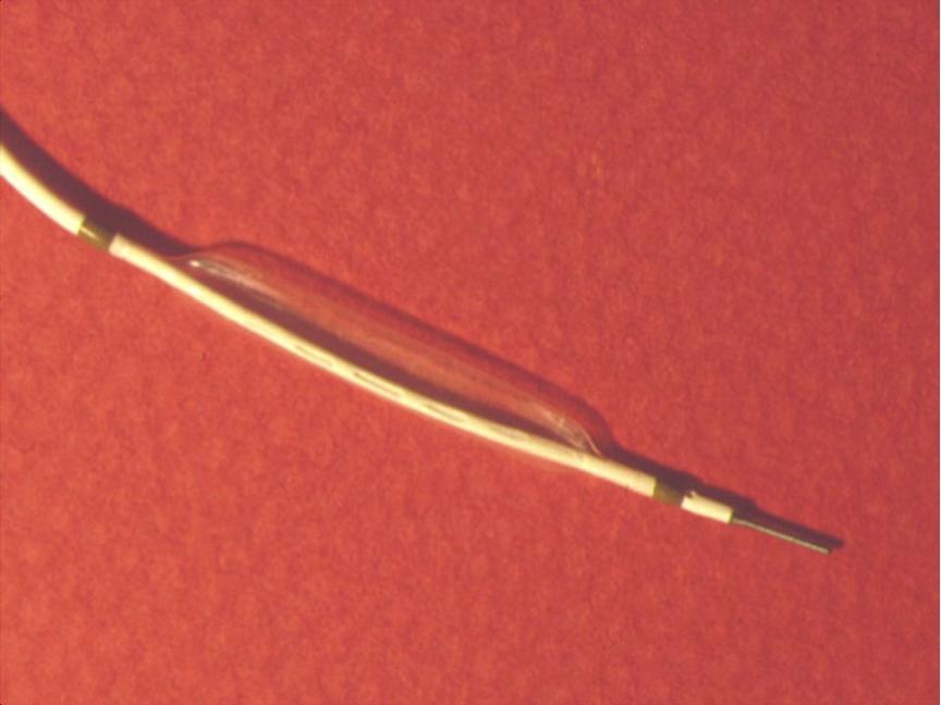 1er ballonnet d'angioplastie coronaire