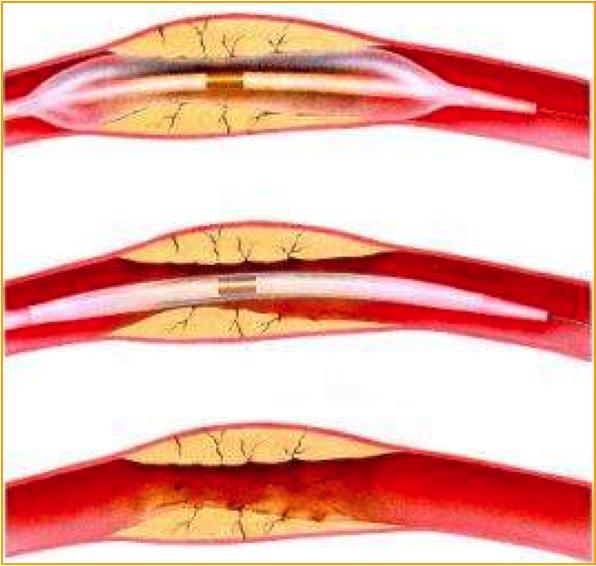 Le principe de l'angioplastie
