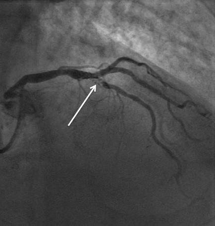 Resténose intra-stent nu IVA