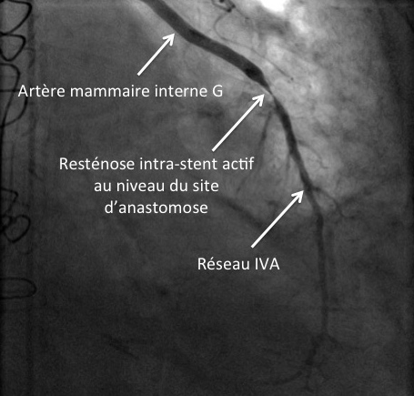 Resténose intra-stent actif