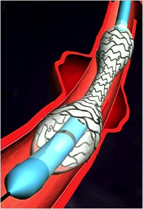 stent couvert