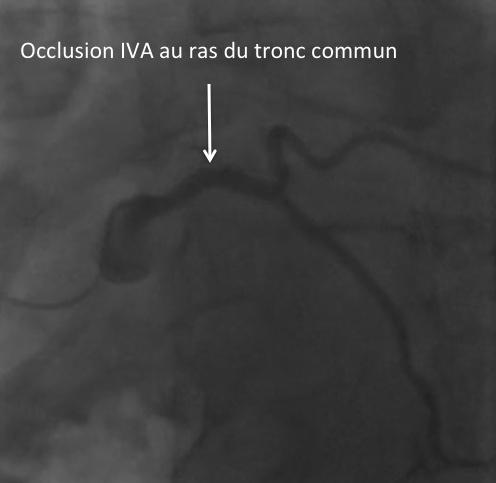 Occlusion IVA ras du tronc