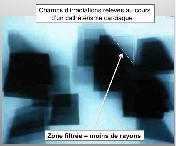 Champs d'irradiation