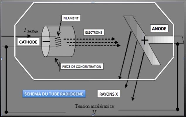 Shéma du tube radiogène