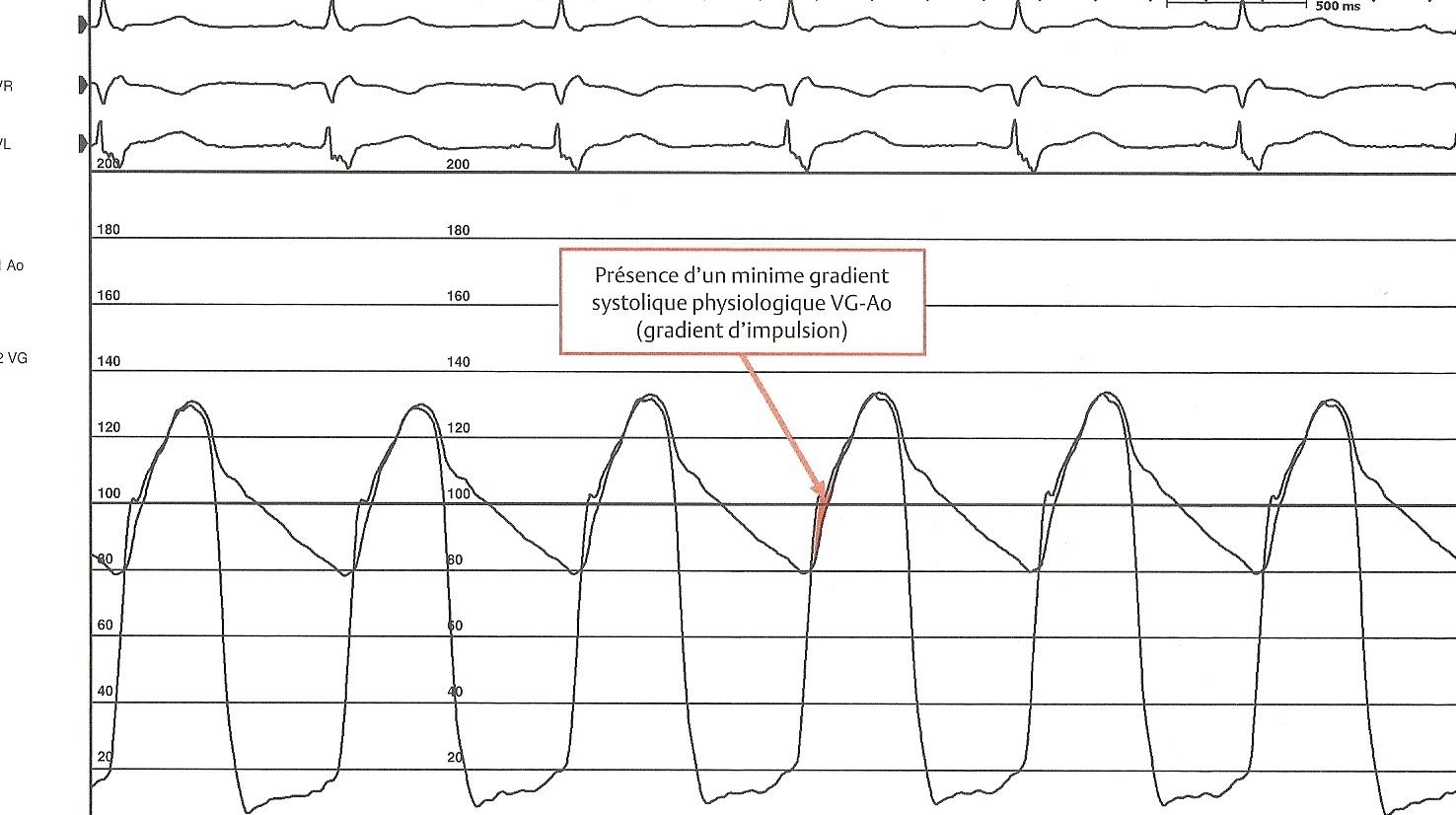 Gradient VG-Aorte