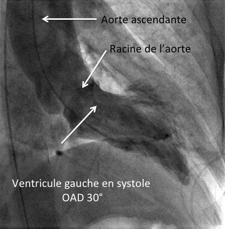 Ventricule gauche en systole
